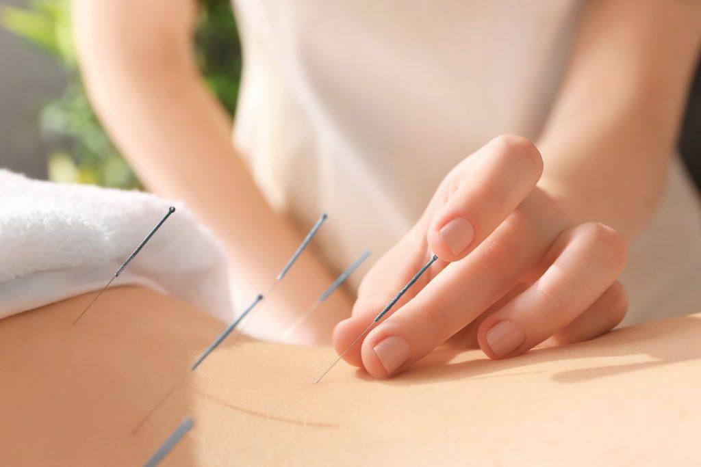 Agujas corporales de acupuntura