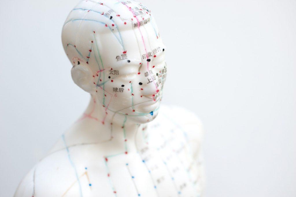 Acupuntura para tratamiento neuralgia de trigémino